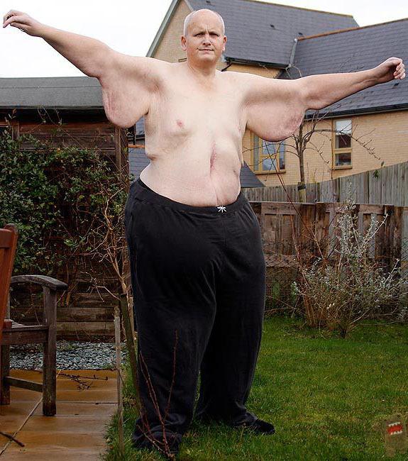 perte de poids de lhomme le plus lourd du monde hula hooping pour perdre la graisse du ventre