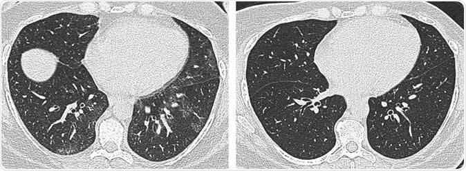 Tout savoir sur le scanner thoracique