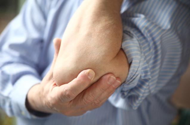 histoires de perte de poids de polyarthrite rhumatoïde