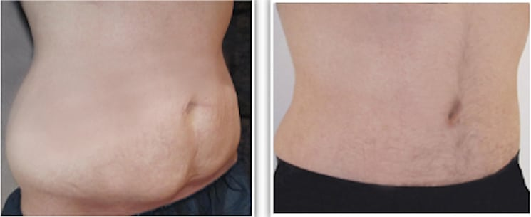 perdre du poids besoin de plastie abdominale pouvez-vous perdre de la graisse thoracique naturellement