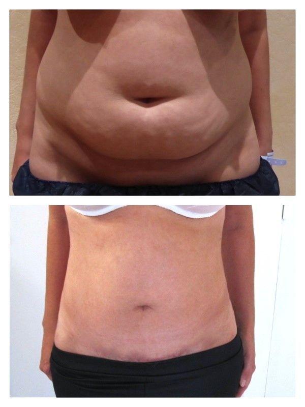 L'abdominoplastie ou chirurgie ventre plat fait-elle perdre du poids ?