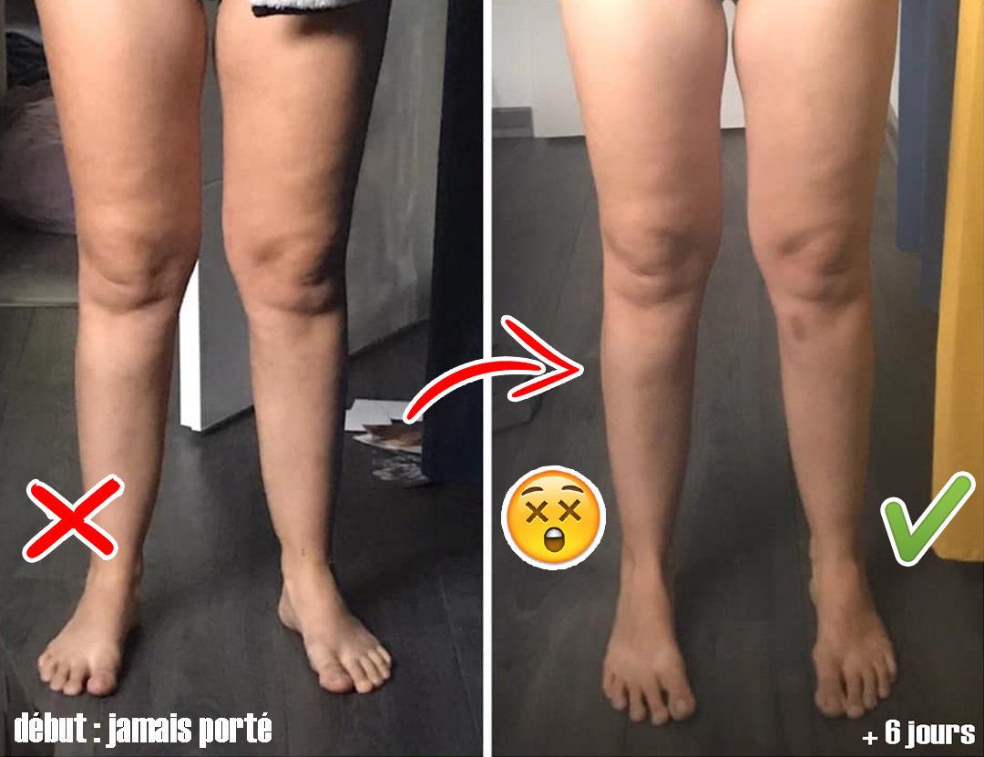 lipœdème avant et après la perte de poids