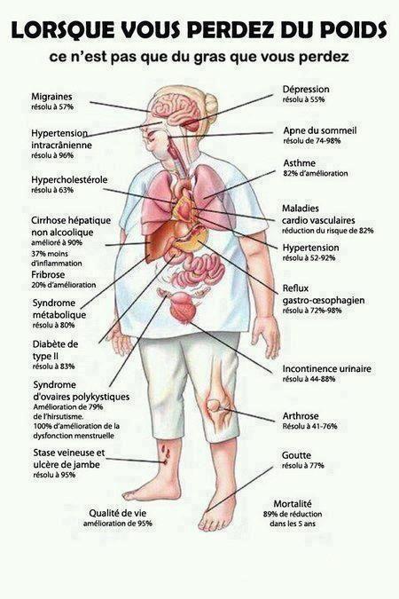 La prise en charge du patient obèse – FMC-HGE