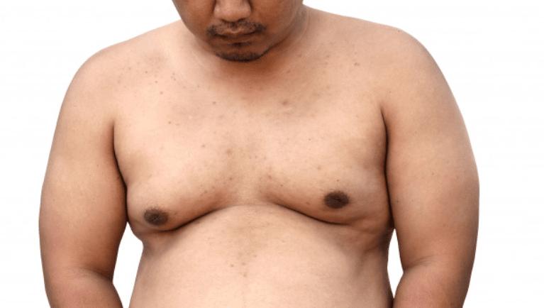 comment perdre la graisse de la poitrine rapide femme
