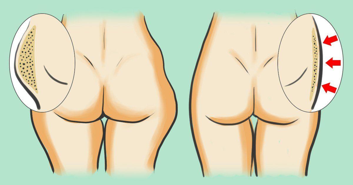 comment perdre la graisse des hanches arrière