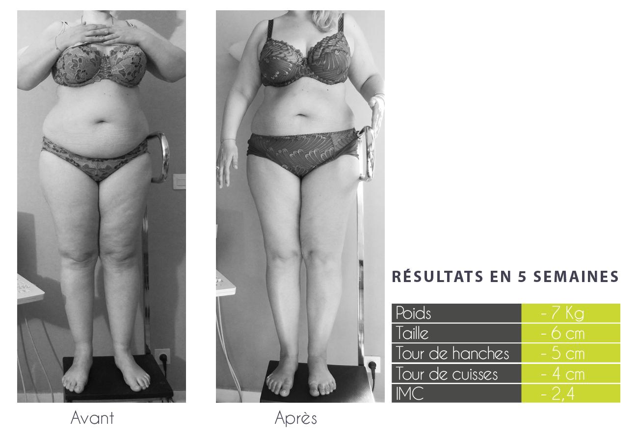 perdre des applications de graisse du ventre zone dintensité de combustion des graisses