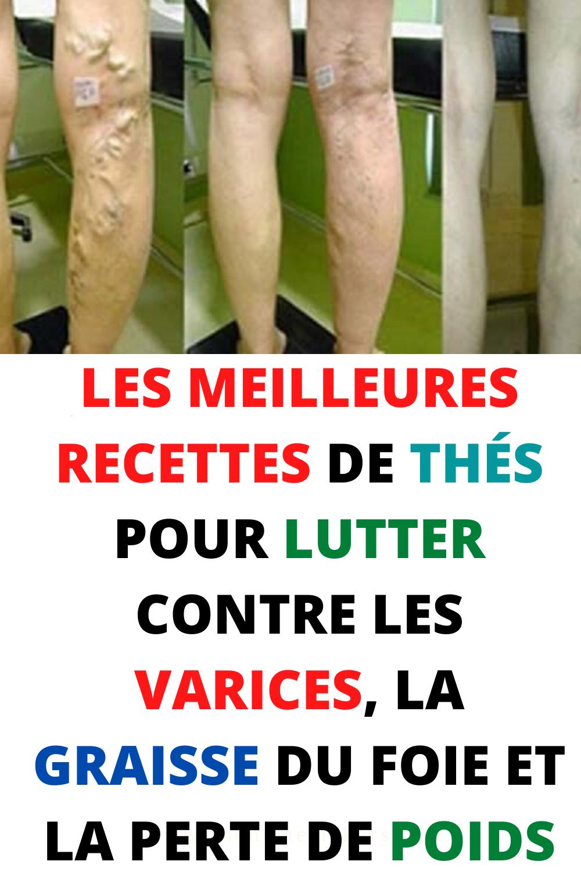 Ch@t : Les varices
