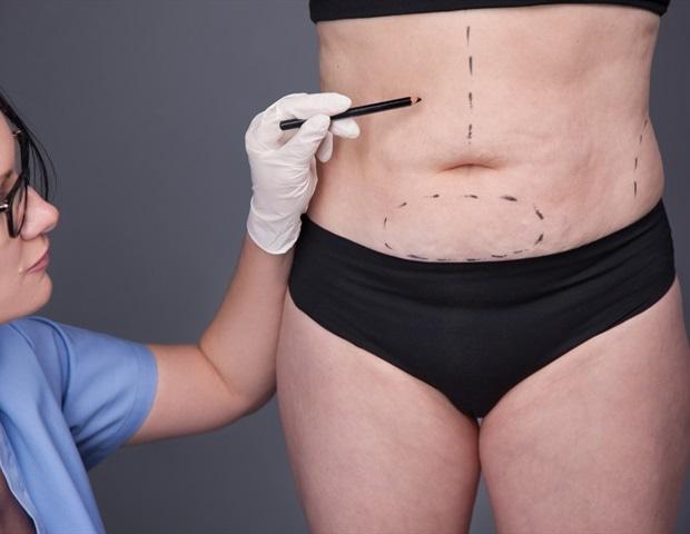 perte de poids après une procédure bariatrique