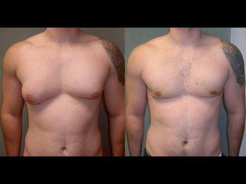 Exercices et conseils pour éliminer la graisse des pectoraux