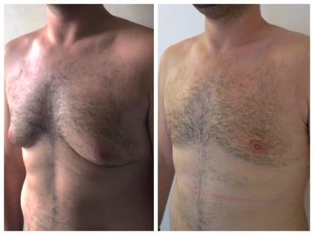 Adipomastie : Ce qu'il faut faire pour perdre la graisse sur les pectoraux