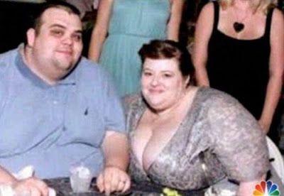 Dolly Dimples, ou le record de perte de poids | Raconte-moi l'Histoire
