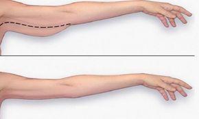 comment enlever la graisse du bras rapidement