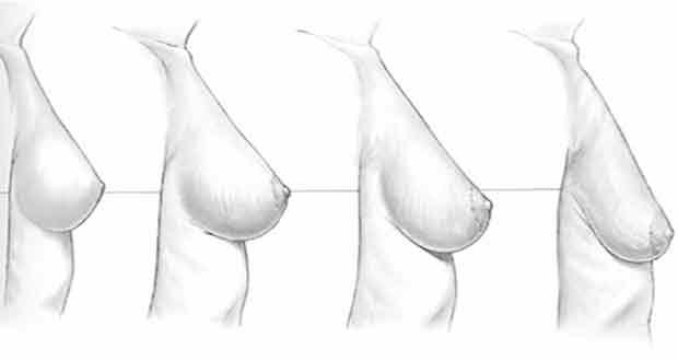 prévenir la perte de poids des seins affaissés