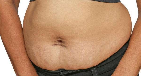 comment enlever la graisse du ventre après un avortement