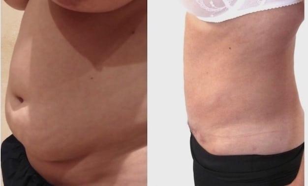 abdominoplastie perte de poids avant après coût de perte de graisse de masse centrale