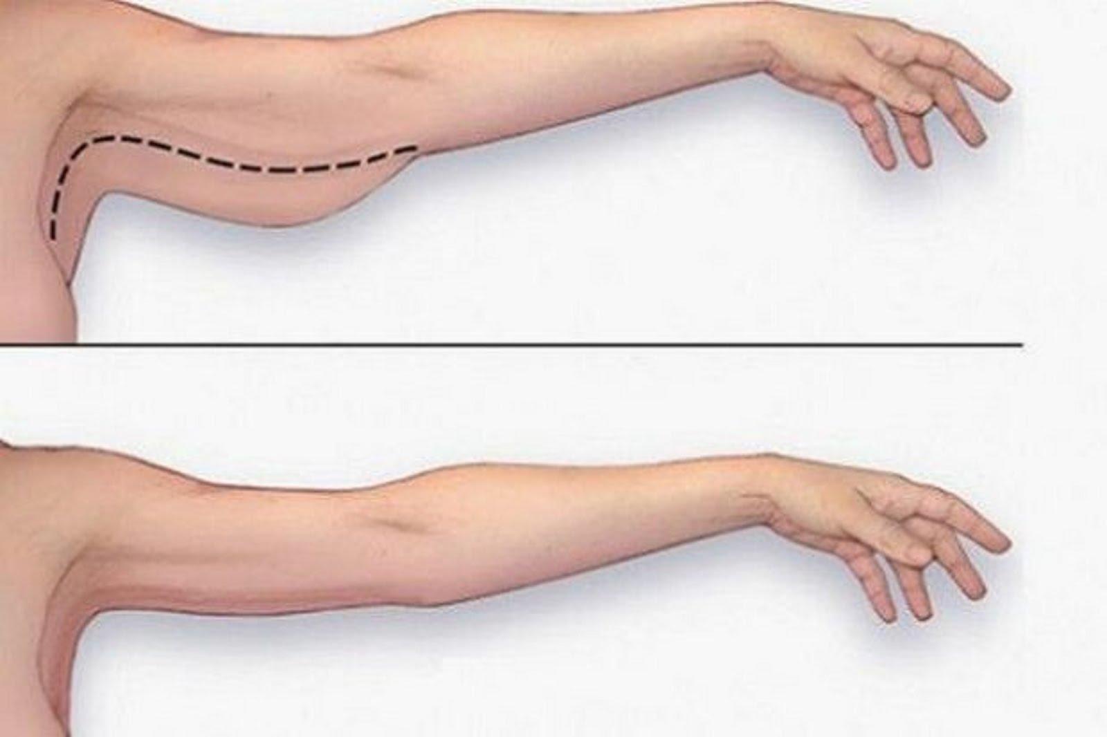 meilleure façon de brûler les gros bras