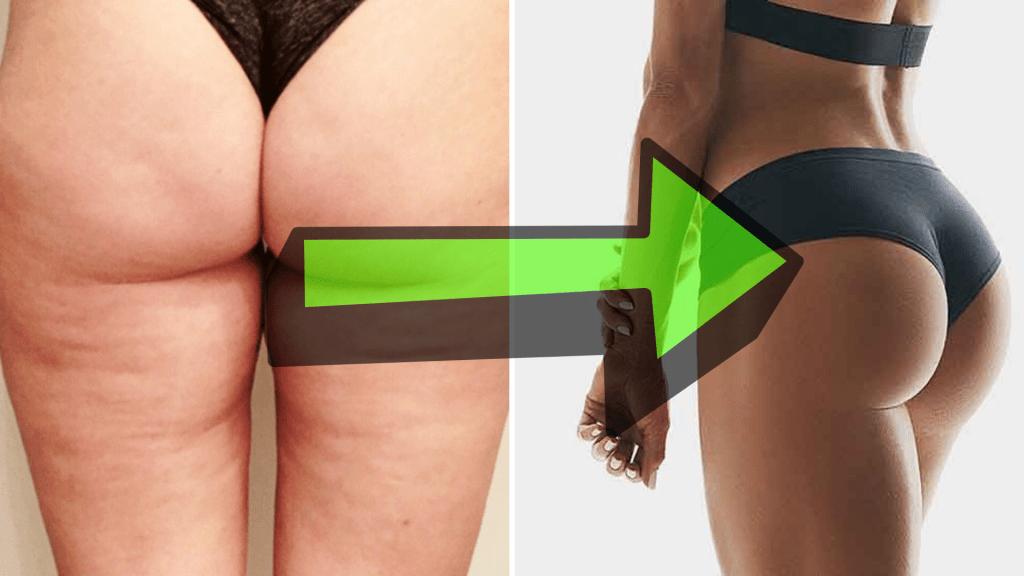 comment perdre la graisse de la fesse supérieure