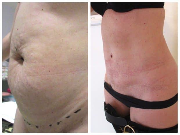 abdominoplastie perte de poids avant après pas de perte de poids 2ème semaine