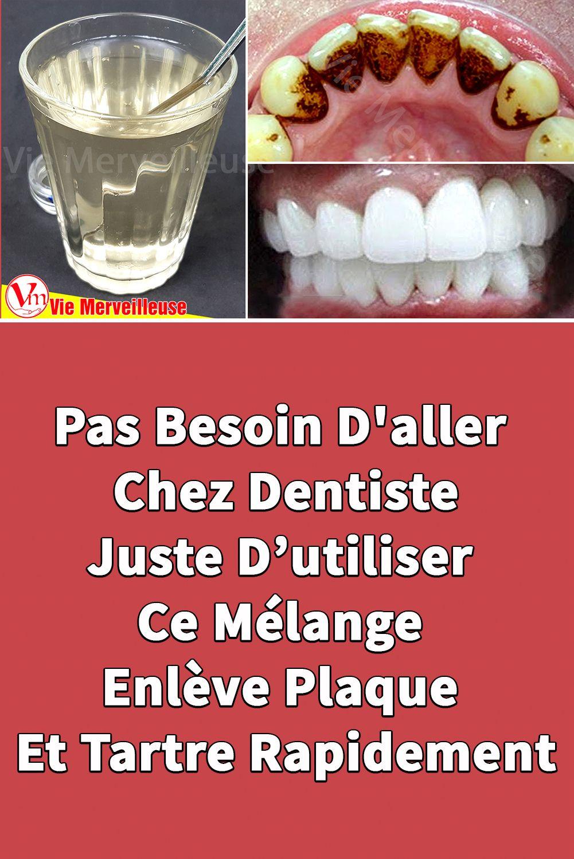 dentaire perdre du poids