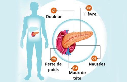 Symptômes du cancer du foie