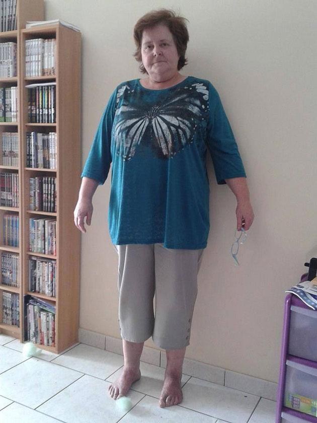 Une femme de 50 ans perd du poids