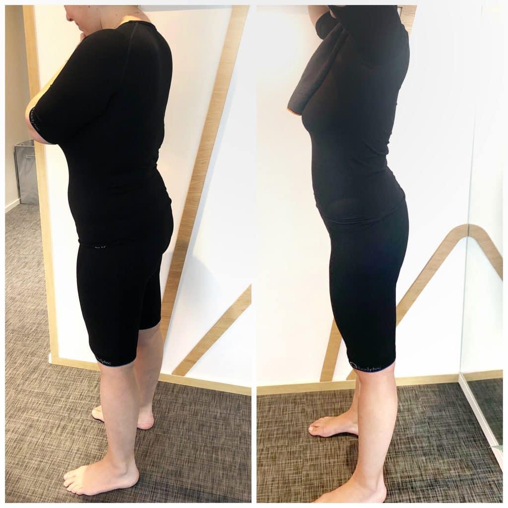 ems perte de poids avant et après
