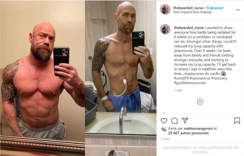 Coronavirus : Un infirmier perd 22 kg et poste deux photos avant-après la maladie