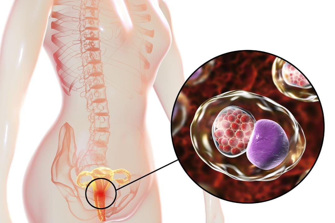 la chlamydia vous fait perdre du poids