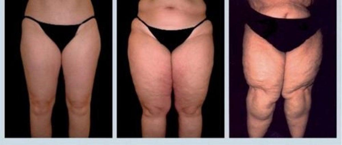 6 mois de perte de poids avant et après puis-je perdre du poids en faisant mma