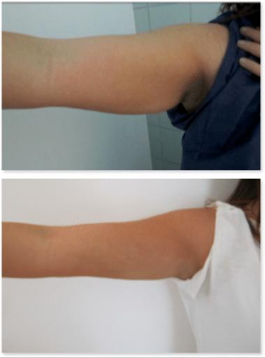 7 conseils pour maintenir la graisse après un lipofilling - davidpicot.fr