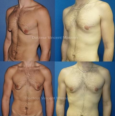 supplément de perte de graisse sans danger examen des ressources de perte de poids