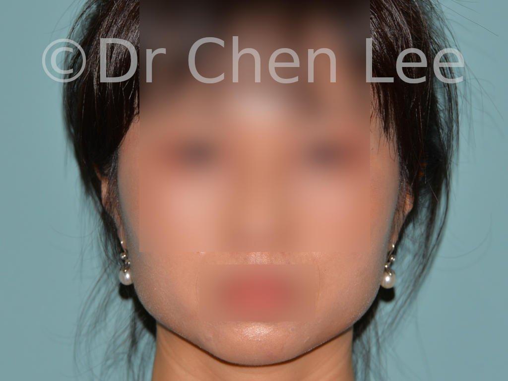Chirurgie esthétique des joues - Bichectomie | Dr Nicolas ZWILLINGER