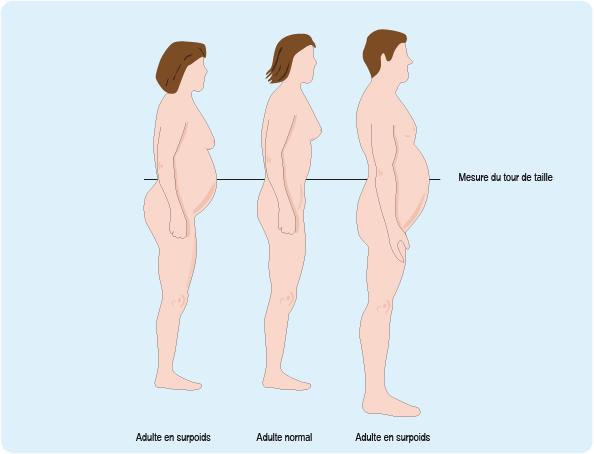 Obésité et perte de poids: l'accompagnement est fondamental - Planete sante