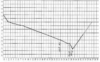 Surpoids et enceinte - NHS - perte de poids hypnose - Aromance