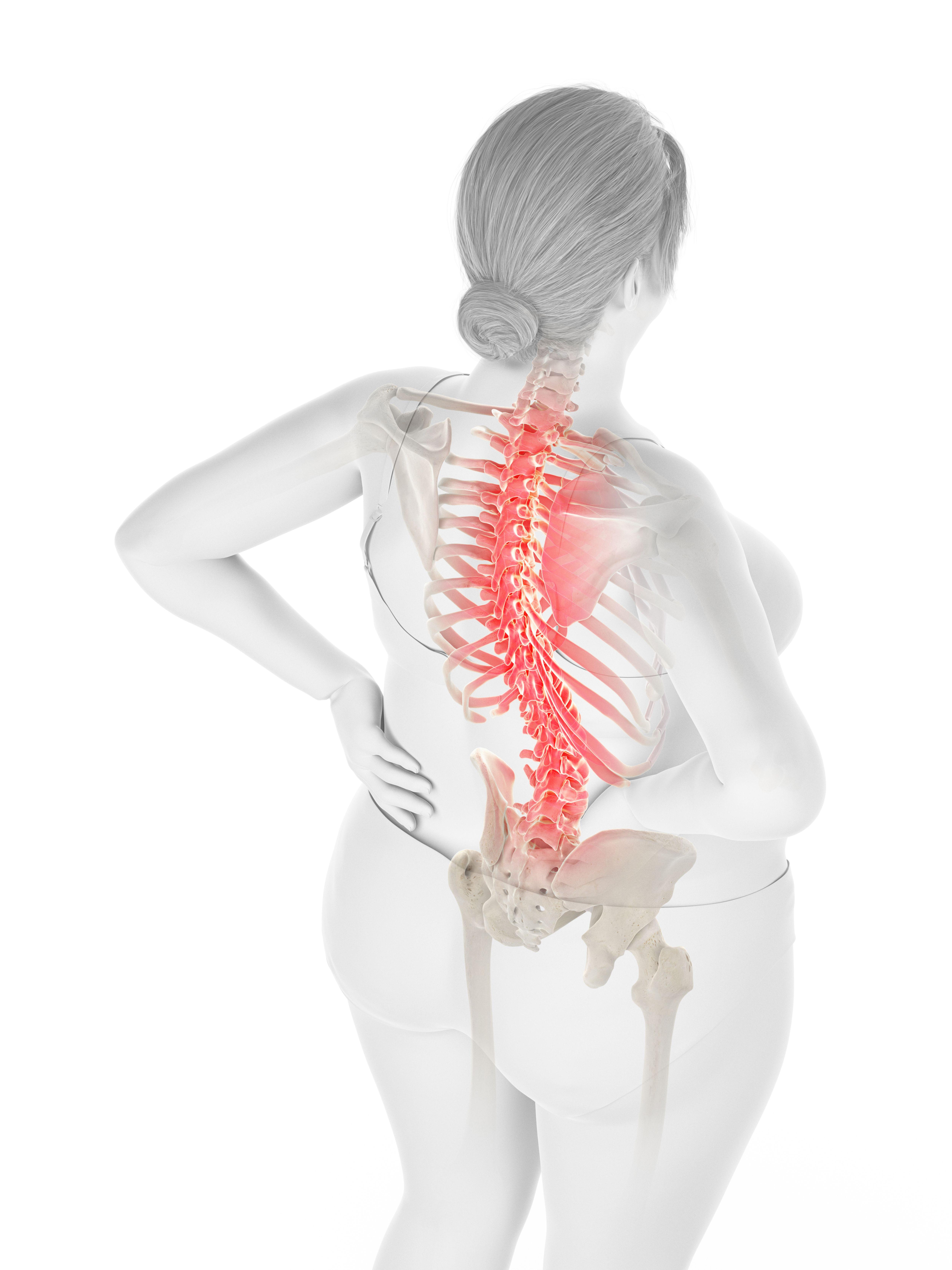 perte de poids et douleurs articulaires