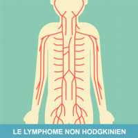 Lymphomes non hodgkiniens : les symptômes et le diagnostic