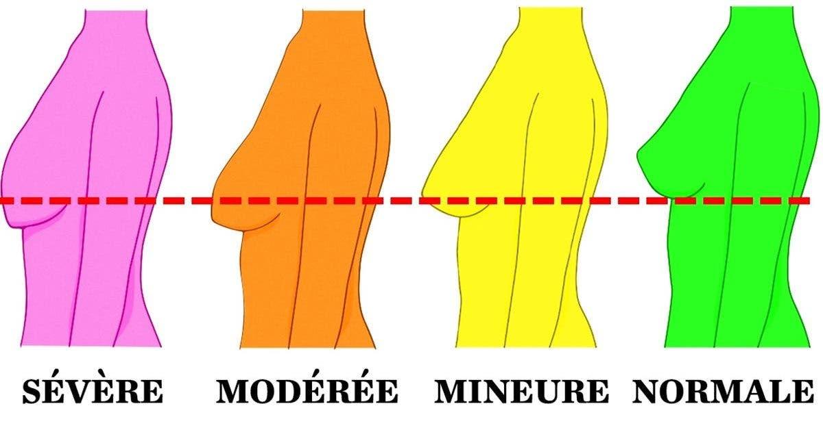 Comment raffermir sa poitrine après une perte de poids ? - Le blog davidpicot.fr