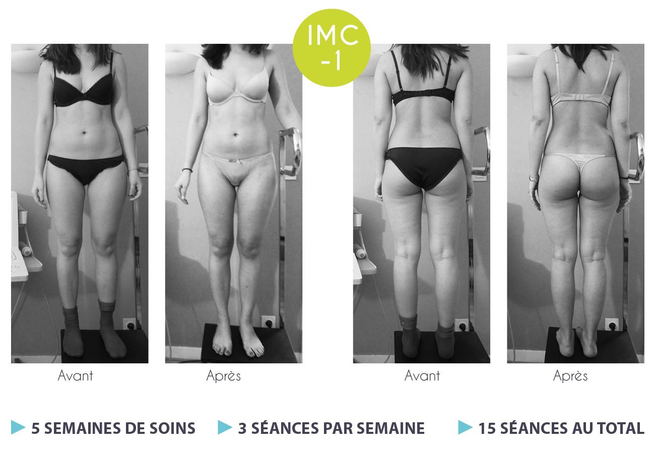 résultats de la perte de poids après 3 semaines