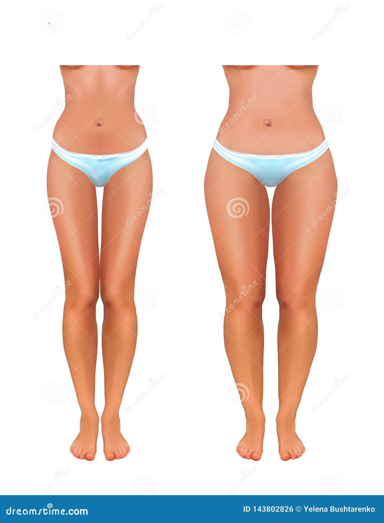 Les 4 types de graisse corporelle