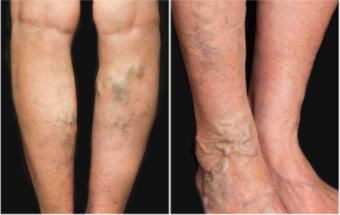 varices aggravées après une perte de poids perte de graisse significative