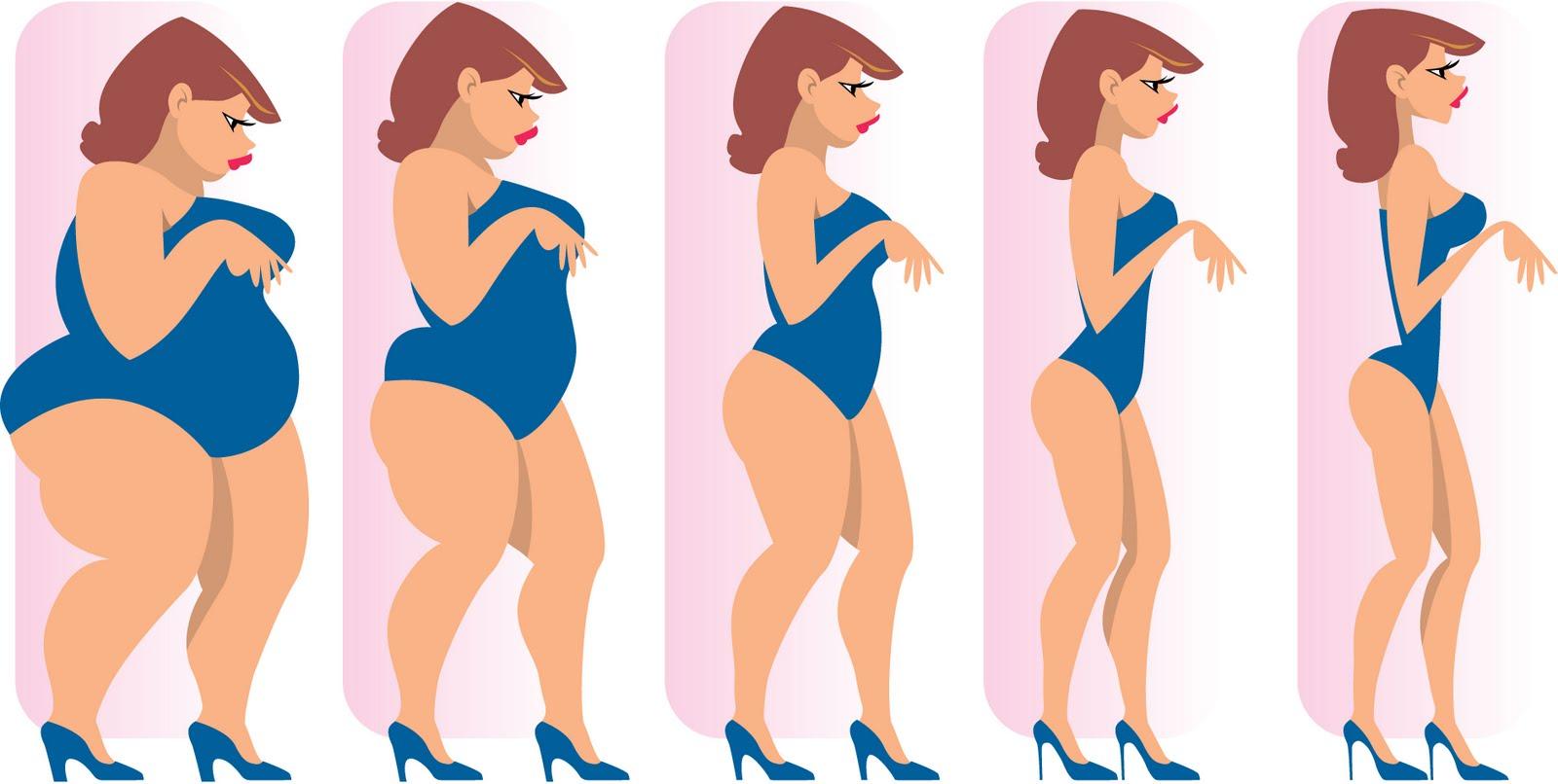 Les 14 meilleurs chirurgiens pour l'obésité à New Delhi