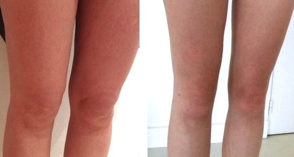 Lipolyse par injection / Injection anti-graisse - Clinique Delc