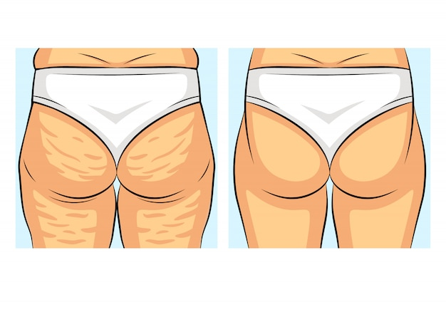 perte de graisse corporelle féminine