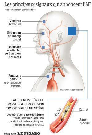perte de poids de tumeur cérébrale brûleurs de graisse naturels sans effets secondaires