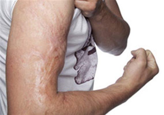 Bruleur Thermogenique | Perte de Poids rapide | Brule Graisse |