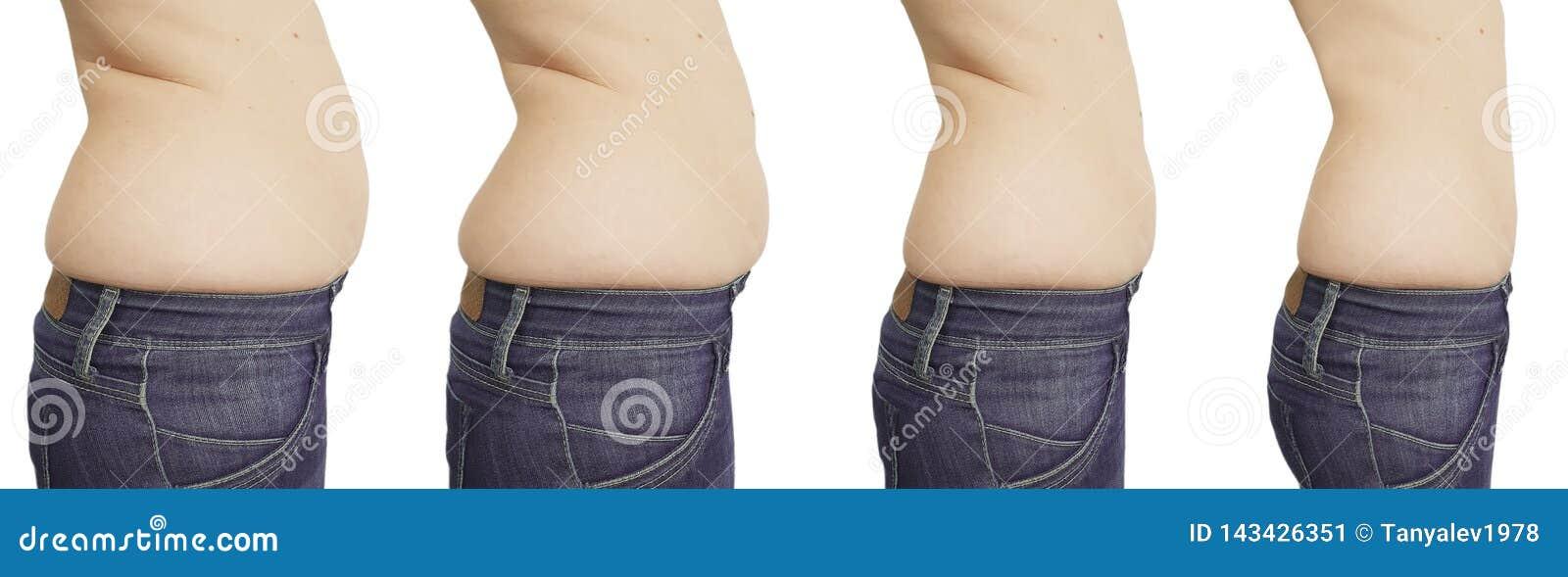 perte de poids du ventre avis de perte de poids dr lee
