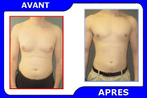 comment perdre de la graisse au sein