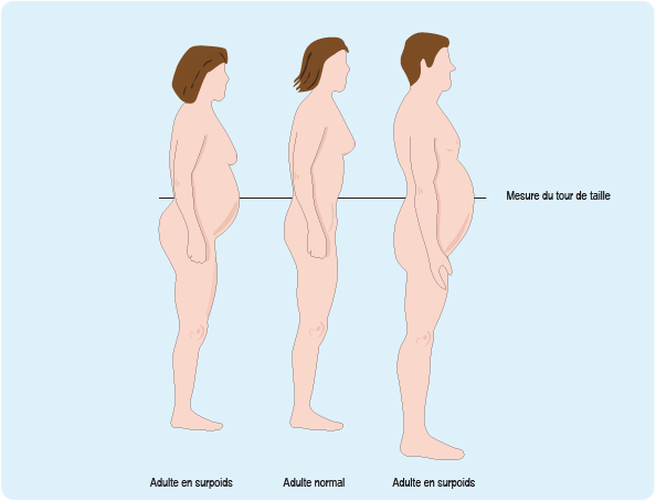 Perte de poids extrême : d'anciens obèses témoignent - Madame Figaro