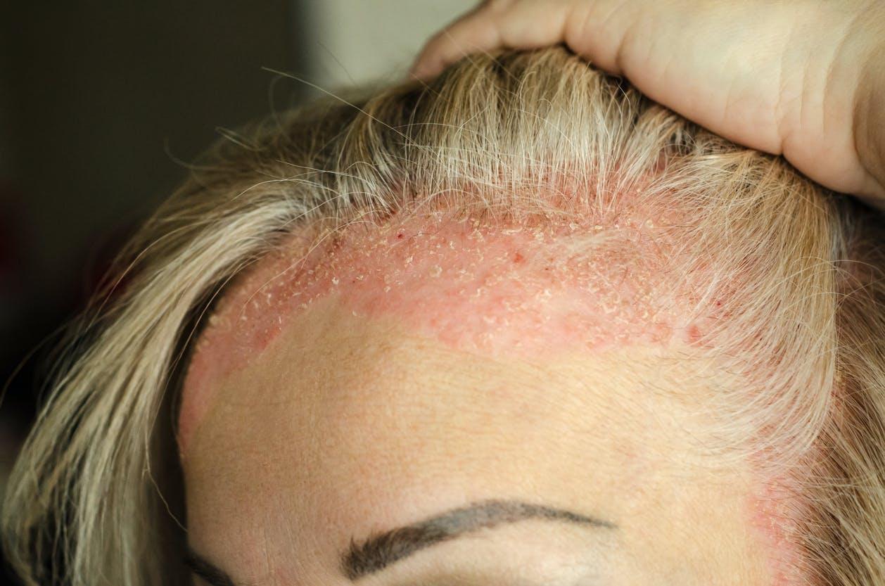 Le psoriasis : une maladie de peau cyclique